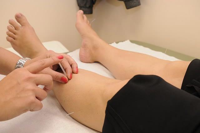 Acupuncture Image
